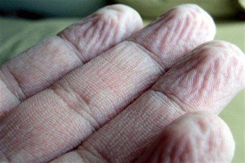 Tο ζάρωμα των δαχτύλων δεν οφείλεται στην είσοδο νερού στο δέρμα. Αντίθετα, ελέγχεται από το νευρικό σύστημα.