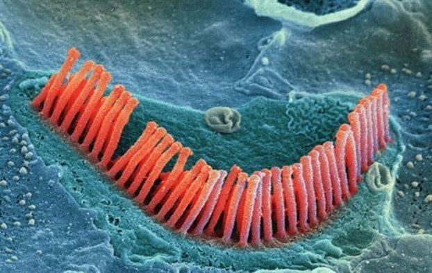 Οι στερεοκροσσοί είναι μικροσκοπικά τριχίδια που παίζουν κεντρικό ρόλο στην ακοή. Ερευνητές κατόρθωσαν να μετατρέψουν κύτταρα σε τέτοια τριχίδια