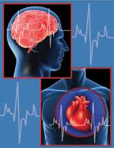 iThe examinations for the prevention of stroke
