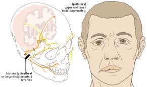 The examinations for the prevention of stroke