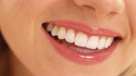 The Secrets About Teeth Whitening