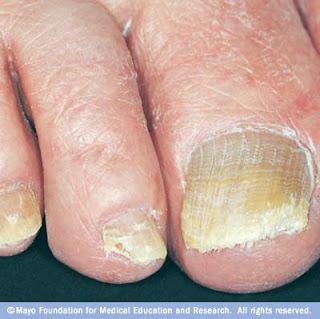 Μύκητες+των+νυχιών.+Θεραπεία+με+φυσικές+μεθόδους.